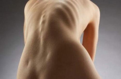 внешний вид спины при ротации тел позвонков