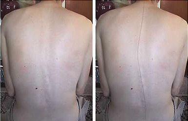 сколиоз грудного отдела позвоночника - фото больного