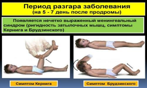 Менингеальный синдром. Симптом Брудзинского. Симптом Кернига. Симптом ригидности затылочных мышц.