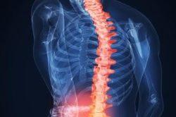 Проблемы с позвоночником - причина боли внизу живота