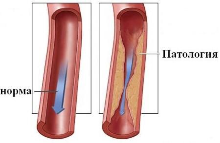 cтеноз позвоночной артерии