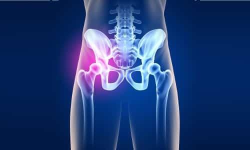 Проблема болезни костей и суставов