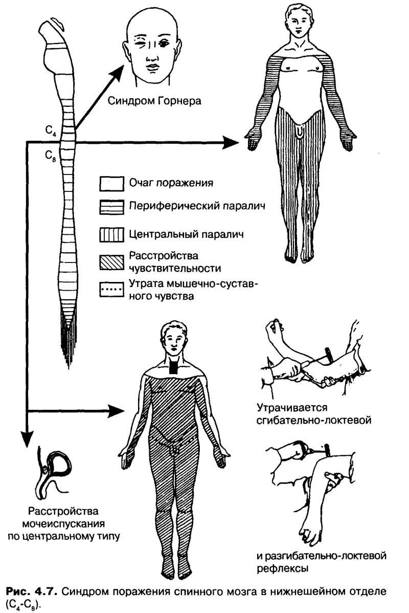 Симптомы и степени патологии фото