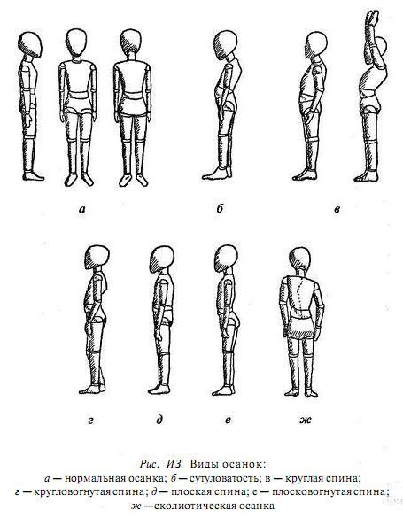 Основные виды деформаций спины