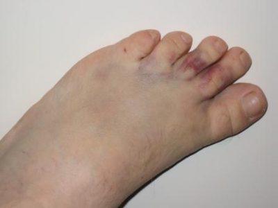 Травма пальцев ног фото