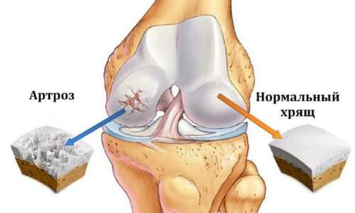 Артроз, как правило, сопровождается болевым синдромом, тугоподвижностью, нарастанием ограничений движений в пораженном суставе