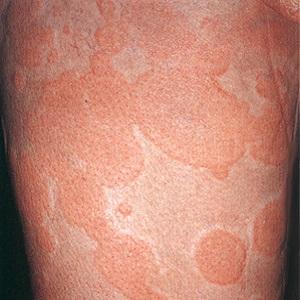 Острая аллергическая крапивница