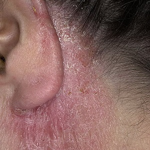 Аллергия за ухом