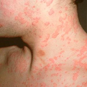 Аллергическая крапивница на шее