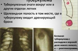 Туберкулема легких