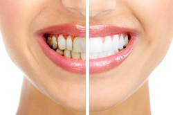 Зубной налет - причина рецессии десны
