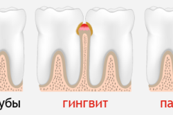 Гингвит и пародонтит - противопоказания к протезирвоанию