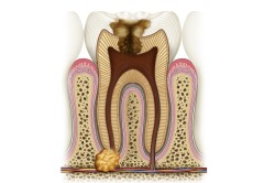 Гранулема корня зуба (схема)