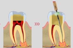 Схема пломбирования каналов зуба