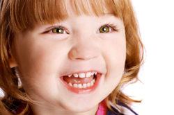 Неровные зубы - симптом адентии