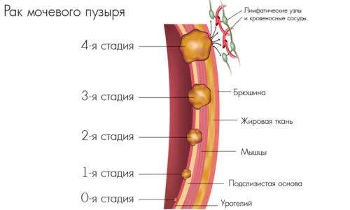 Причиной болей в мочевике могут становиться доброкачественные и злокачественные опухоли органа