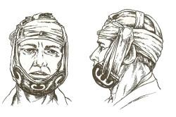 Шина при переломе челюсти