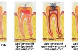 Стадии хронического периодонита