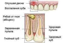 Схема абсцесса зуба