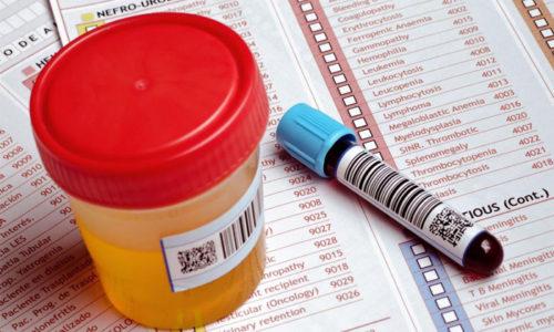 Лабораторные методы исследования включают в себя общеклинические анализы мочи и крови