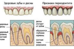Отличие здоровых зубов и десен от воспаленных периодонтитом