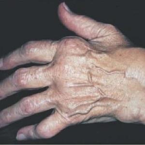 Артрит на суставах руки