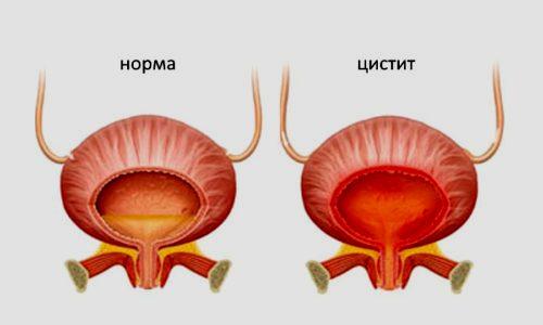 Воспаление слизистого слоя мочевого пузыря - заболевание, возникающее у пациентов любого возраста