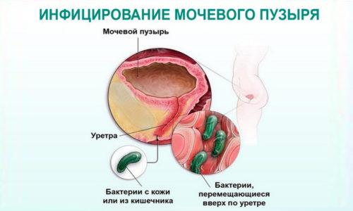 Развитие пиелоцистита у женщин обусловлено особенностями строения мочеполовой системы, т. к. уретра более короткая, поэтому патогенным микроорганизмам легче попасть в организм