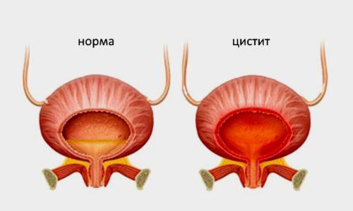 Кишечная палочка в мочевом пузыре приводит к развитию воспалительного процесса - цистита