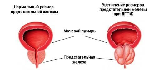 предстательной железы в норме и при аденоме простаты