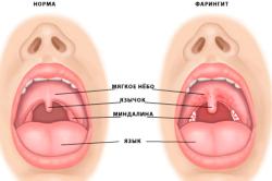Фарингит - одно из заболеваний полости рта