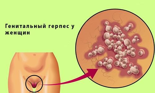 Герпетическое поражение выделительной системы считается частым осложнением генитального герпеса