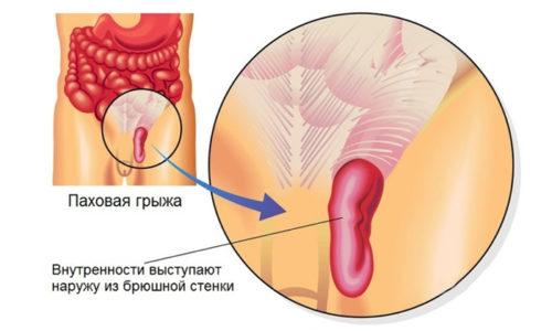 Проблема интимного характера - грыжа яичка у мужчин, часто запускается