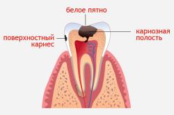 Кариес - причина возникновения абсцесса зуба
