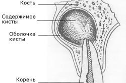 Киста зуба - возможное осложнение пульпита