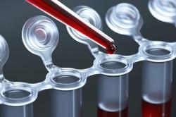Анализ крови для диагностики эмфиземы легких