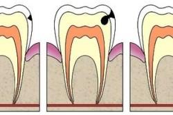 Глубокий кариес в зубе