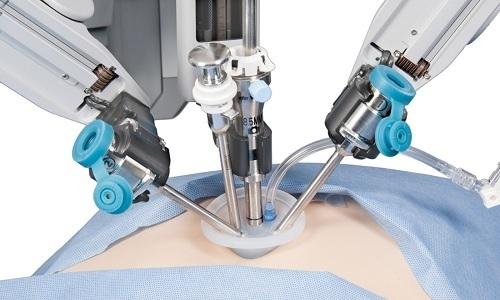 Лапароскопия представляет собой плановое вмешательство, при котором грыжу осторожно удаляют, сделав 3 небольших прокола области брюшной стенки