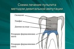 Схема лечения пульпита