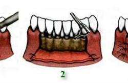 Этапы лоскутной операции для лечения пародонтита