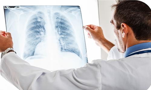 Проблема болезней легких