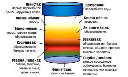 Моча может быть окрашена в иной цвет при употреблении некоторых продуктов, медикаментов и при заболеваниях печени и почек