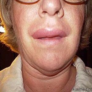 Опухание губ