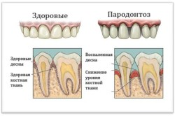 Здоровые десна и десна с пародонтозом