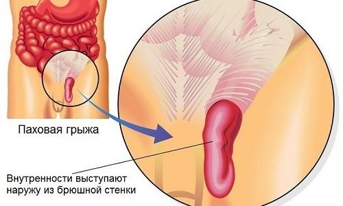 Паховая грыжа - это распространенное детское заболевание, при котором содержимое брюшной полости выпячивается через паховый канал