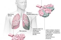 Развитие пневмосклероза легких при пневмонии