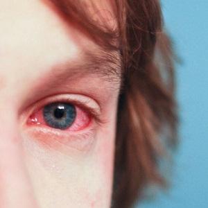 Покраснение слизистой оболочки глаза