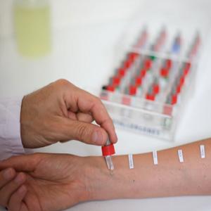 Аллергические тесты (пробы)