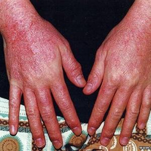 Проявление аллергического дерматита