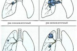 Типы рака легких